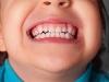 Серебрение зубов: преимущества и недостатки